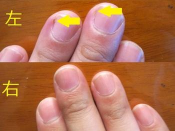 左手中指薬指にばい菌が入って腫れた